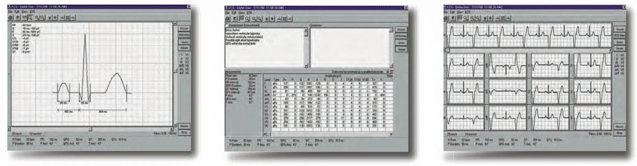 Universal ECG Testing Equipment